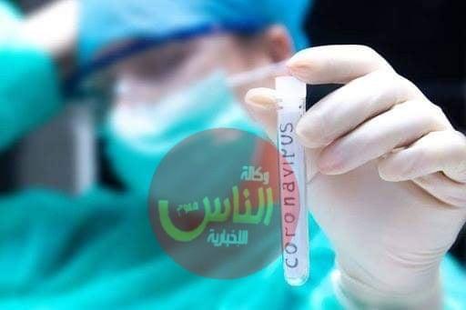 9 وفيات و 721 اصابة جديدة في المملكة